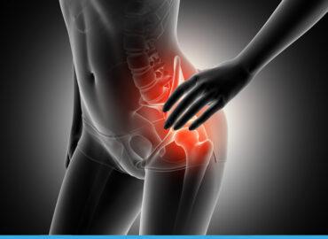 Patologie infiammatorie dell'anca