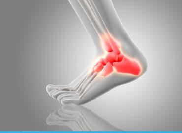 Biomeccanica della caviglia