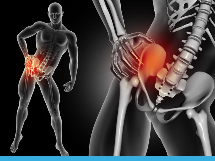 Protesi di anca, ginocchio e spalla: perché una protesi può fallire?