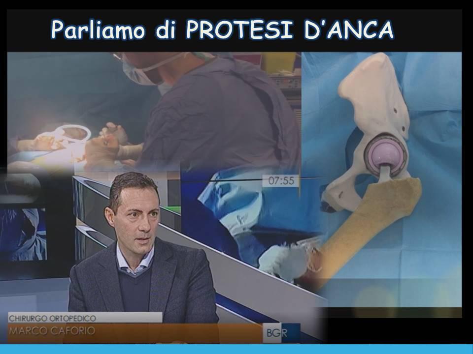Parliamo di protesi d'anca