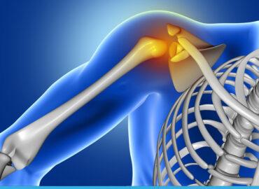 La protesi di spalla