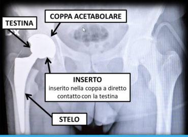 La protesi d'anca